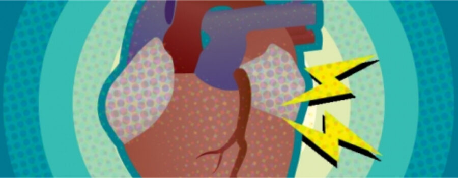 Study reveals new link between atrial fibrillation and mutations in heart disease gene