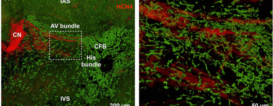 Macrophages Facilitate Electrical Conduction in the Heart